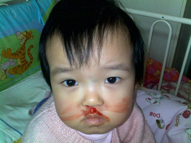 小孩鼻子结构图